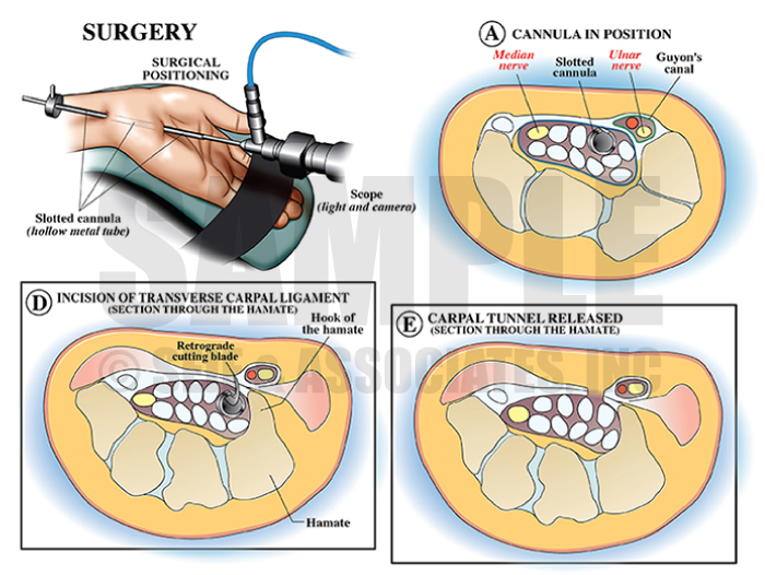 Carpal Tunnel Surgery Medical Illustration