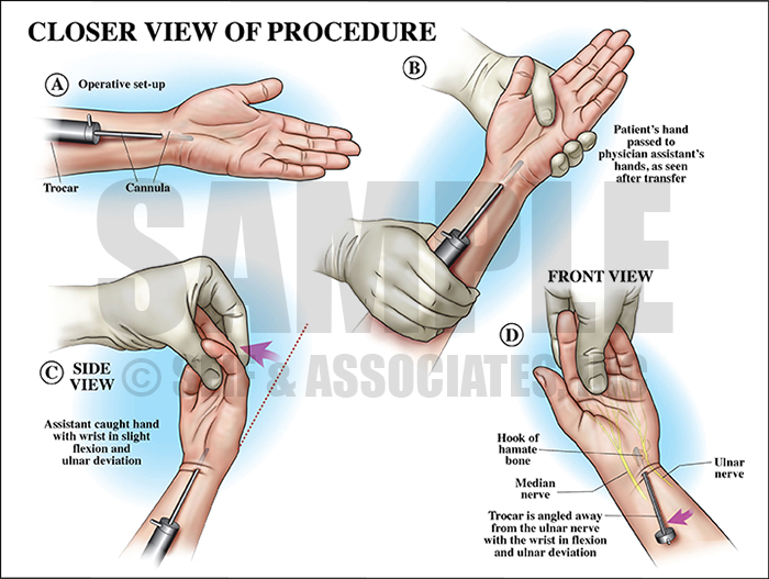 Carpal Tunnel Surgery Procedure Medical Illustration