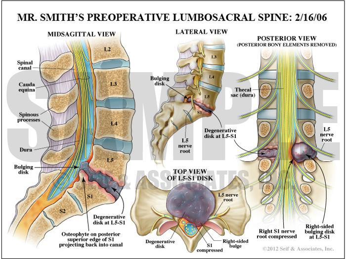 Preoperative lumbosacral spine bulging disk