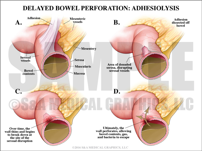 Delayed Bowel Perforation Adhesiolysis