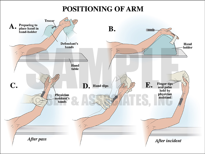 Carpal Tunnel Surgery Position of Arm