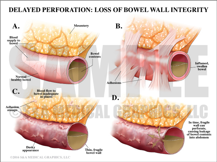 Bowel Perforation Loss of Bowel Wall Integrity