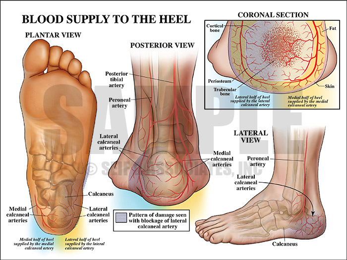 blockage of lateral calcaneal artery