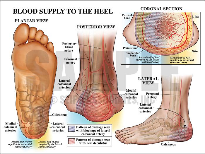 Damage to heel with heel decubitus