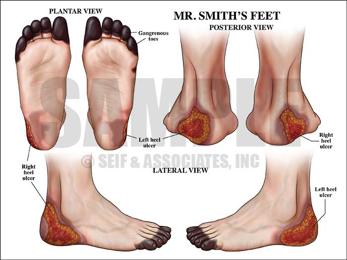 Damage to patient heel medical illustration