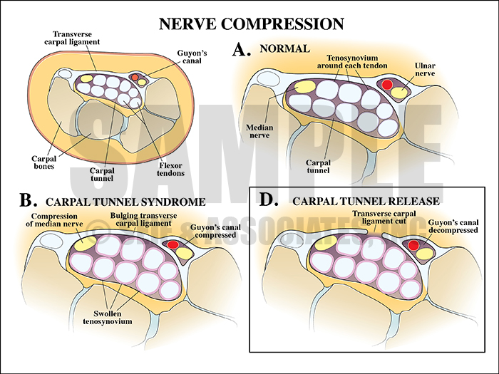 Nerve Compression Carpal Tunnel Medical Illustration