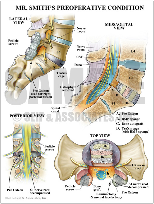 Preoperative Spine Anatomy Medical Illustration