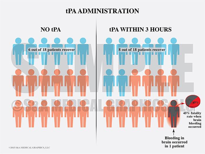 tPA Administration Comparison