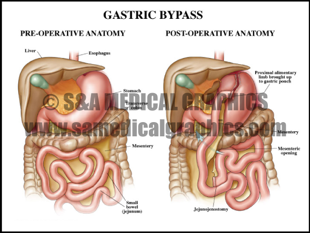 Abdominopelvic surgery gastric bypass
