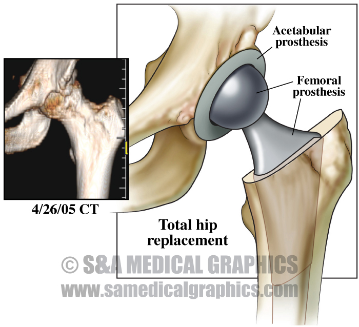 After Total Hip Replacement Surgery Medical Illustration