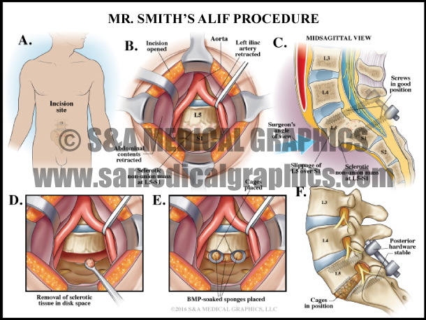 ALIF Spine Surgery Medical Illustration