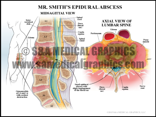 Epidural Abscess Medical Illustration