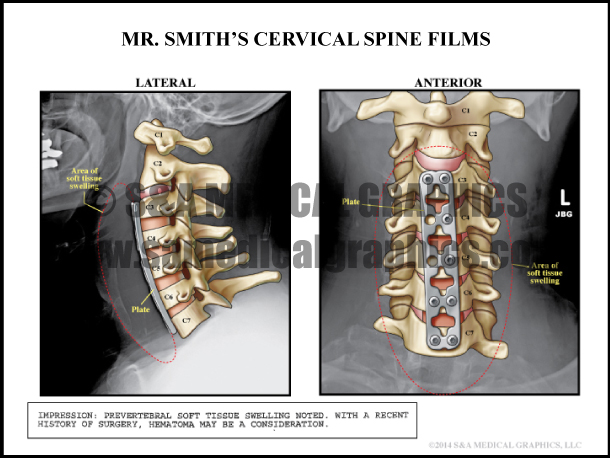 Cervical Spine Film Medical Illustration