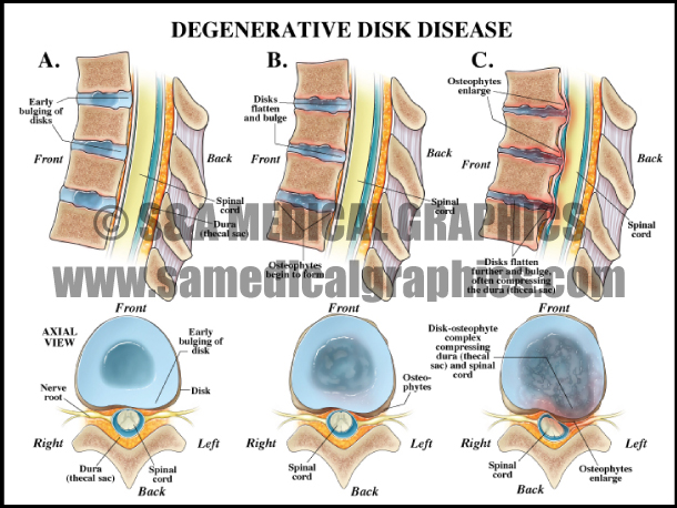 Degenerative Disk Disease Medical Illustration