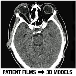 DICOM Patient Films Converted To 3D Models